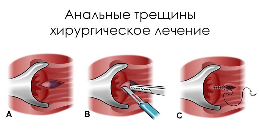 Трещины анальные проходят сами